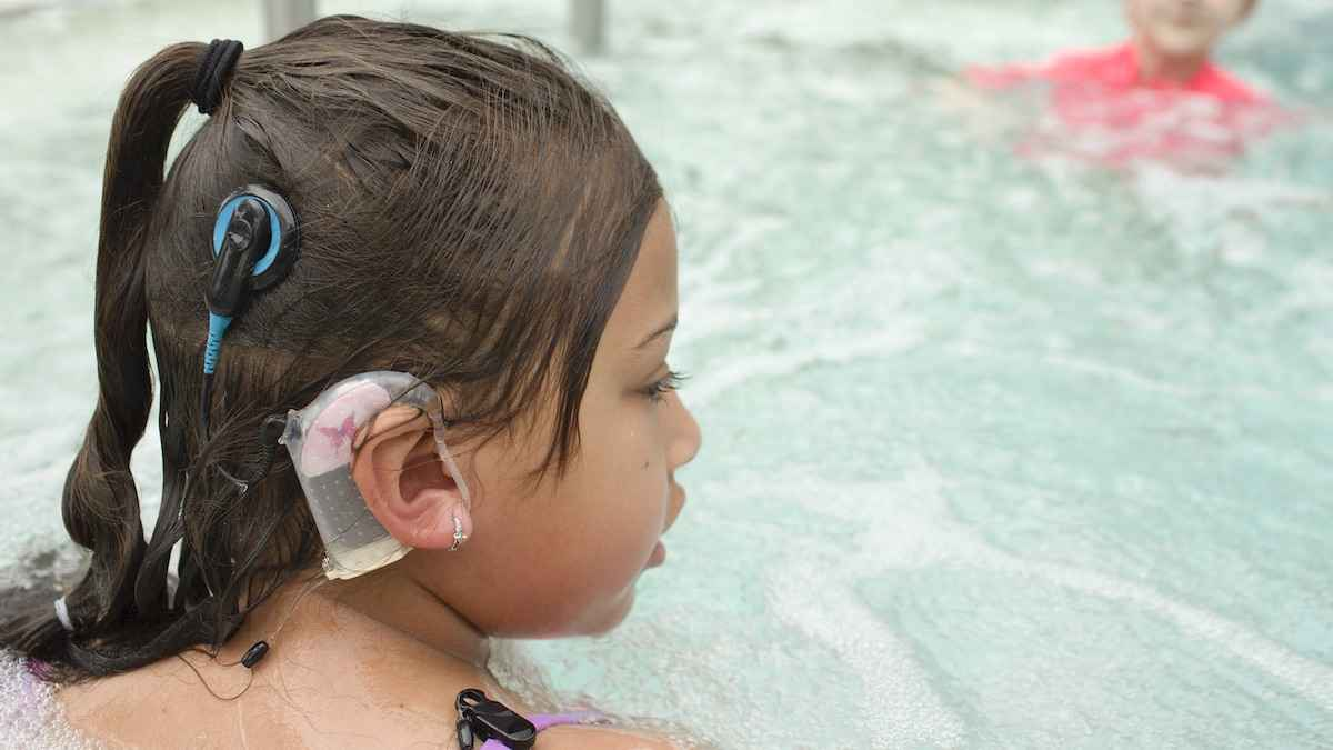 Cochlear Implant Pool