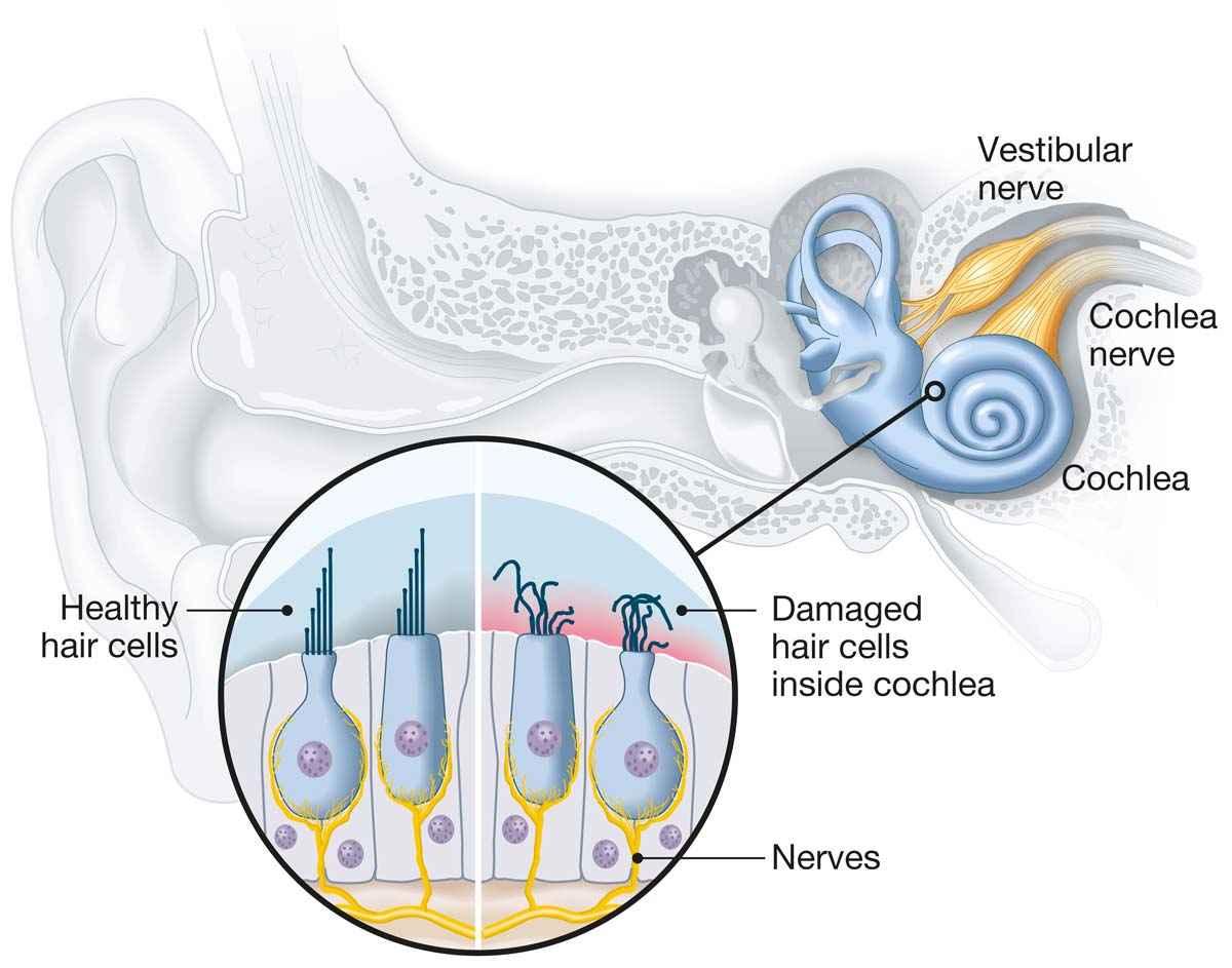 Sensorineural Snhl Hearing Loss