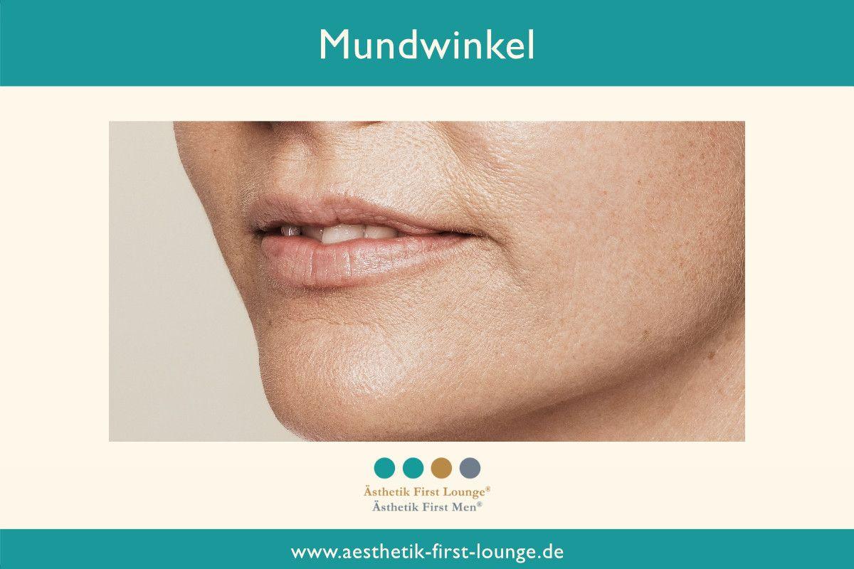 mundwinkel-anheben-mit-hyaluron_aesthetik-first-lounge