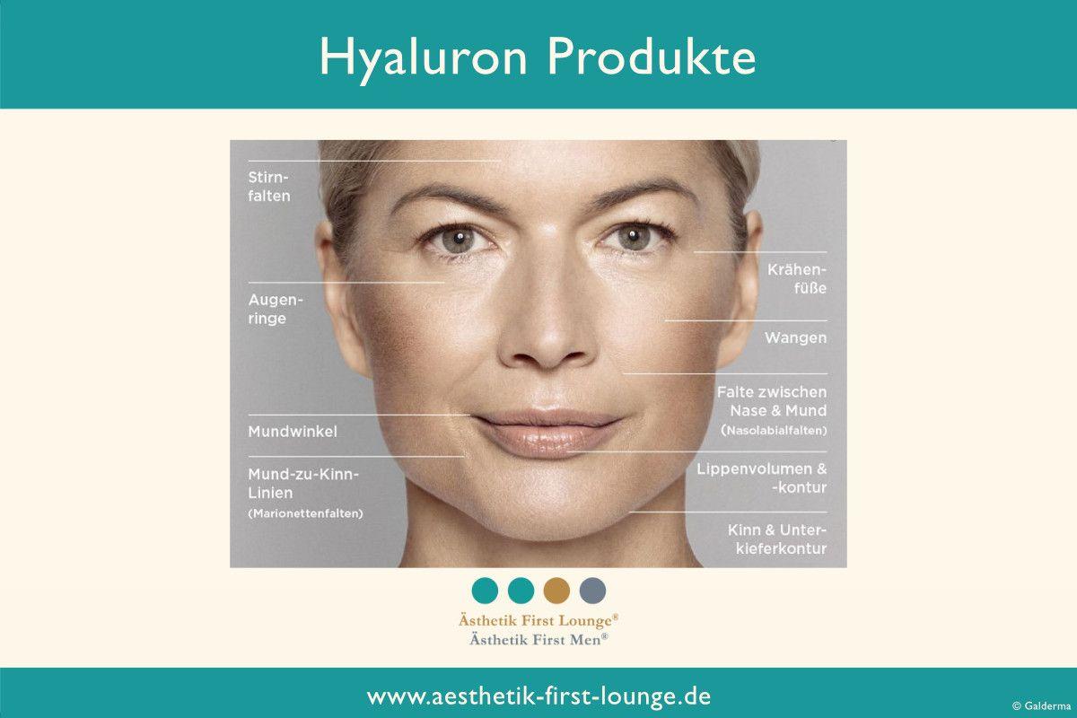 eingesetzte-hyaluron-produkte-restylane-galderma-aesthetik-first-lounge-berlin