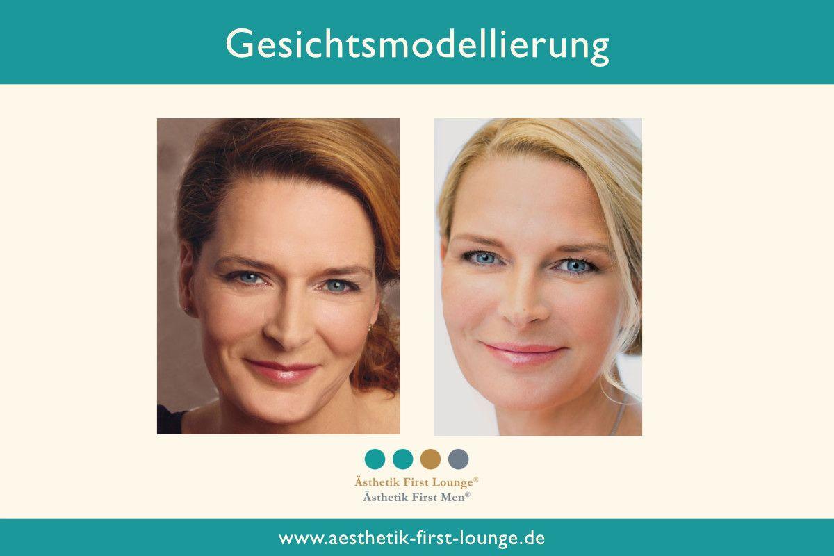 gesichtsmodellierung-mit-hyaluron_ohne-op-aesthetik-first-lounge_vorher_nachher6