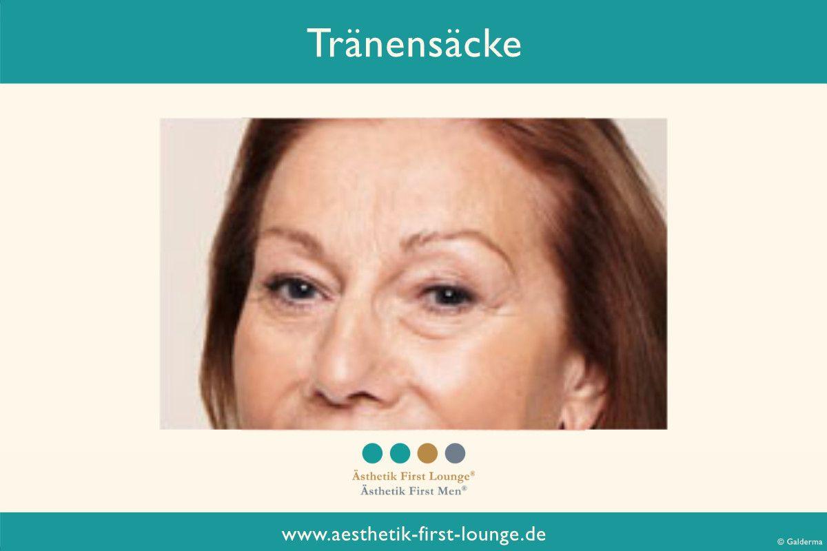 traenensaecke-entfernen-mit-hyaluron-aesthetik-first-lounge
