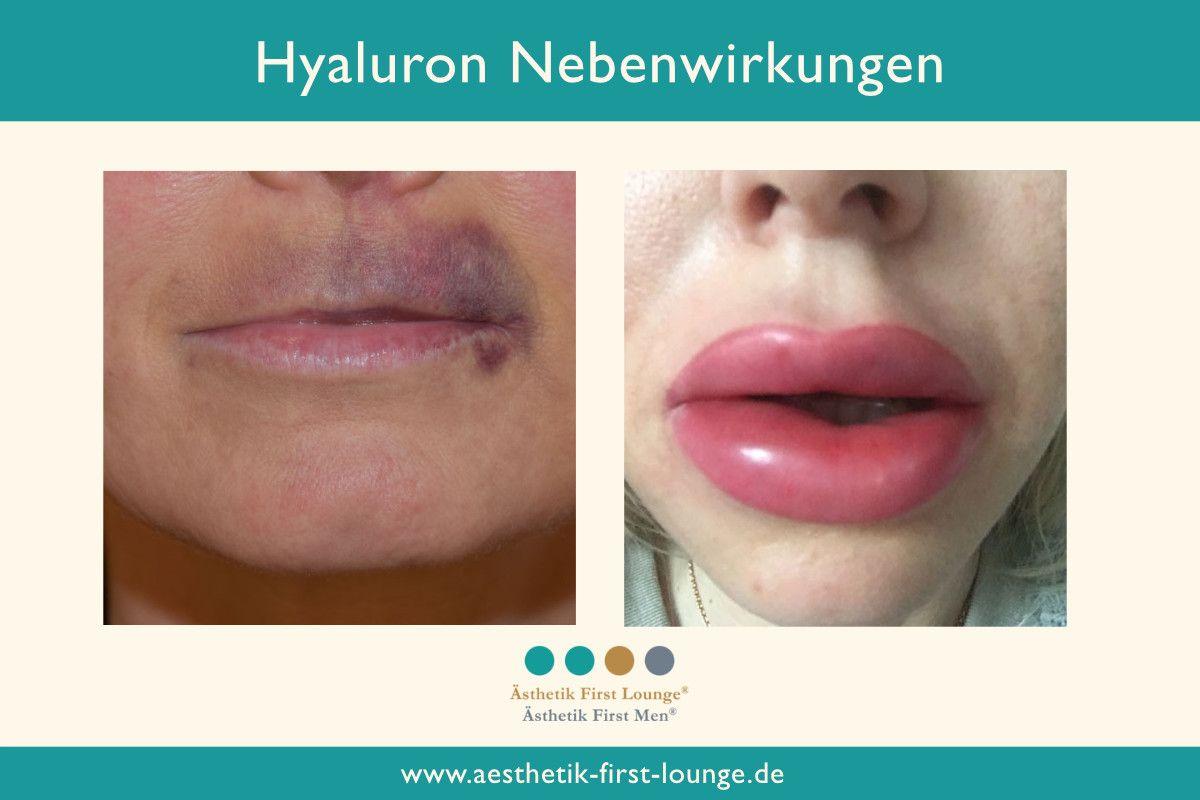 falsch-unterspritzte-lippen-mit-hyaluron_aesthetik-first-lounge
