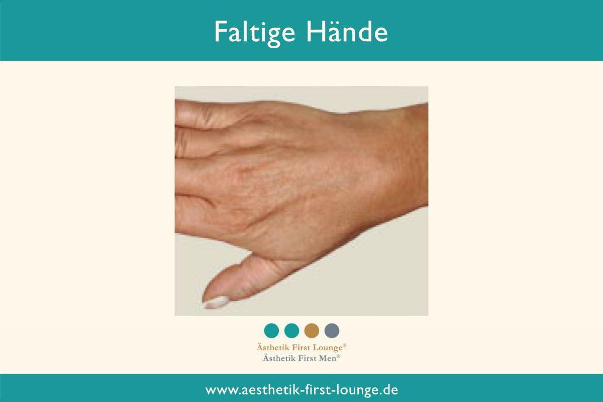 faltige-haende-glaetten-mit-hyaluron-handverjuengung_aesthetik-first-lounge