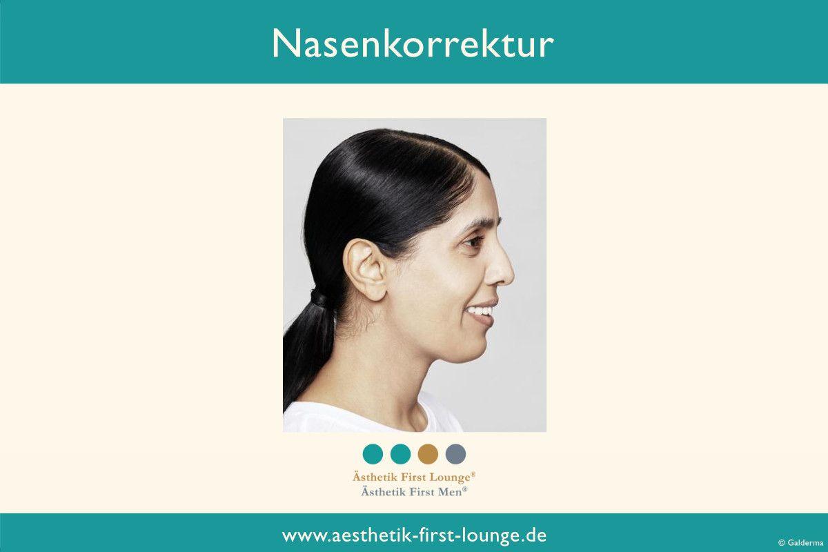 nasenkorrektur-ohne-op-mit-hyaluron_aesthetik-first-lounge-berlin