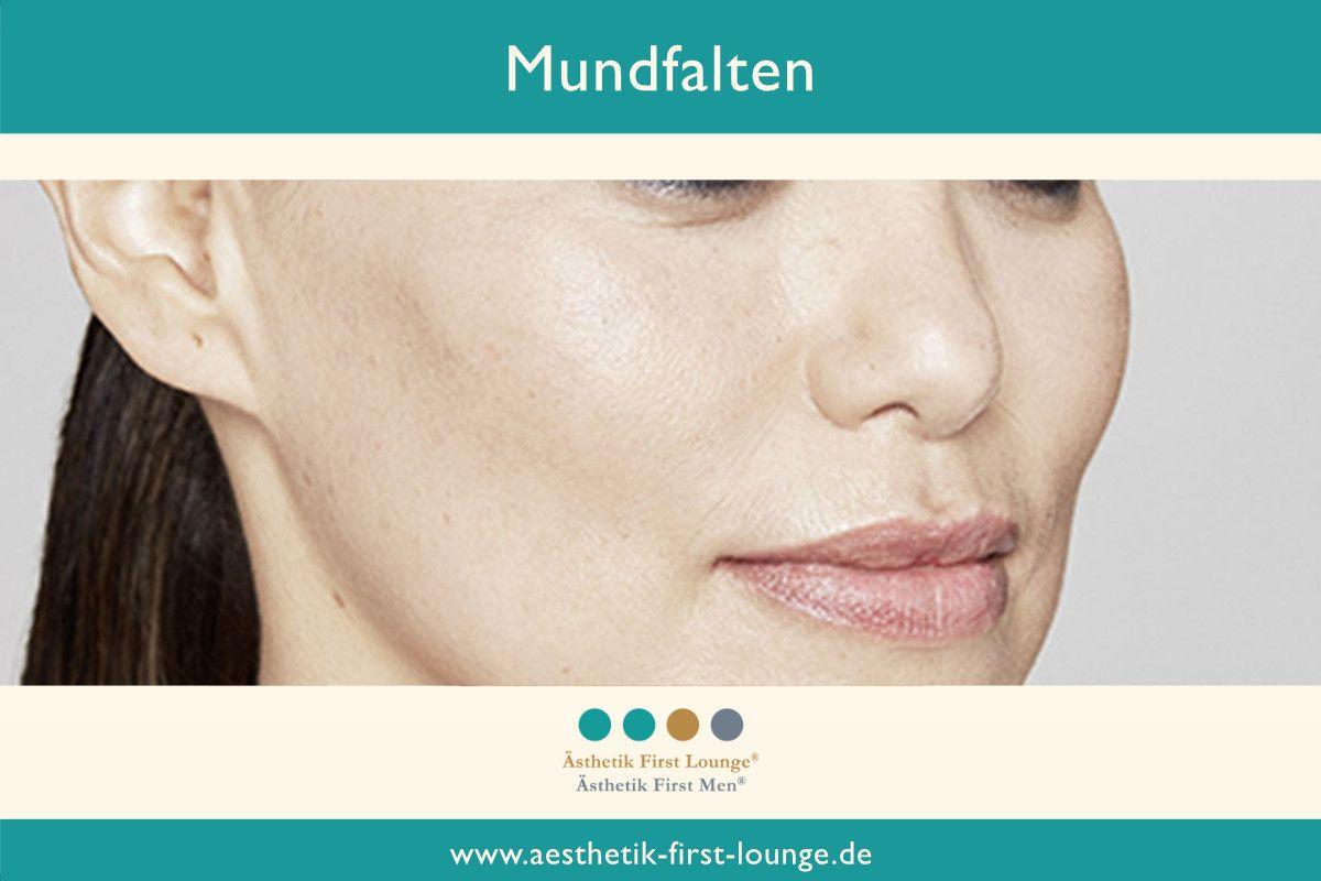 mundfalten-mit-hyaluron-jawline_aesthetik-first-lounge