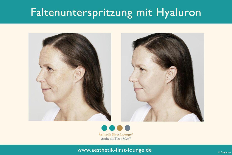 faltenunterspritzung-mit-hyaluron_aesthetik-first-lounge-vorher-nacher