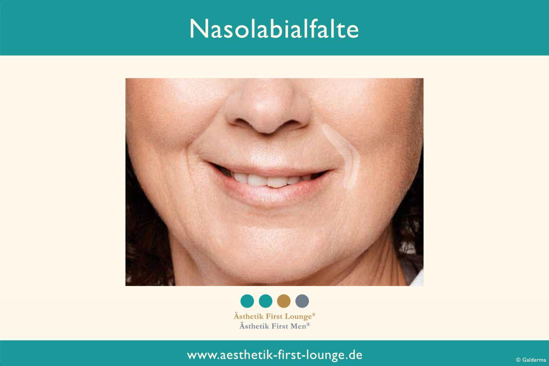 nasolabialfalte-unterspritzen-mit-hyaluron-aesthetik-first-lounge