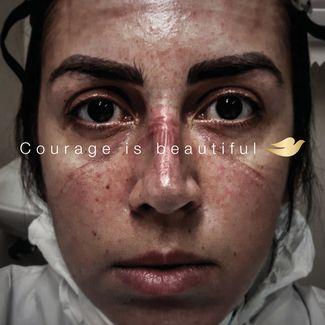Courage is beautiful - Amanda