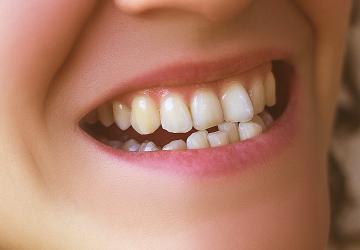 Zahnkorrektur bei schiefen Zähnen