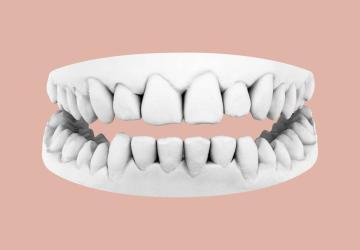 Correggere gli affollamenti dentali