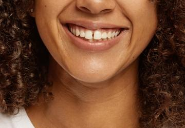Zahnlücke schliessen mit bestsmile