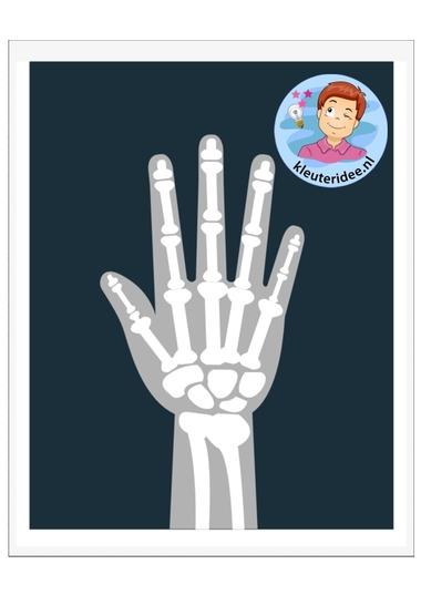 Voorbeeld röntgenfoto's kleuters, kleuteridee