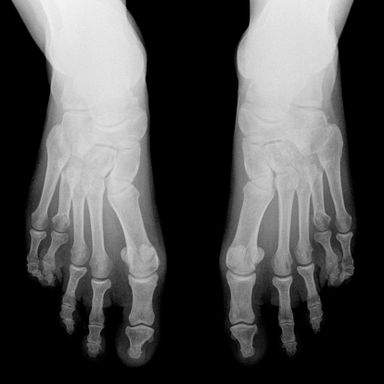 Die Mittelfußköpfchen beider Füße stehen nicht in einer Reihe