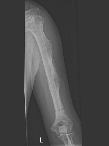 Verlängerter linker Oberarmknochen
