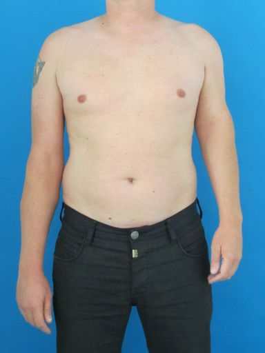 14 cm Verkürzung des linken Arms