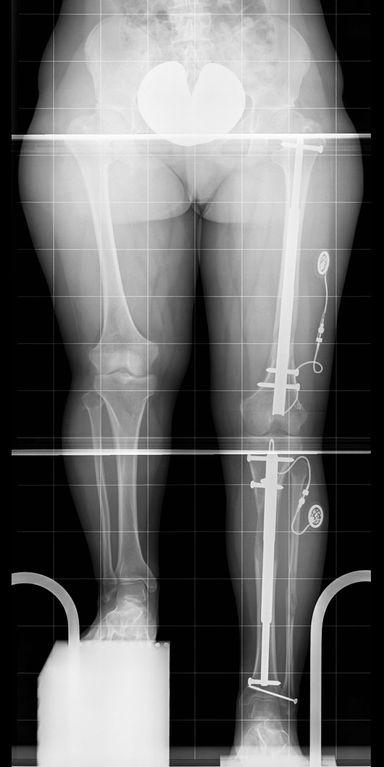 Distraktionsmarknägel im linken Ober- und Unterschenkel