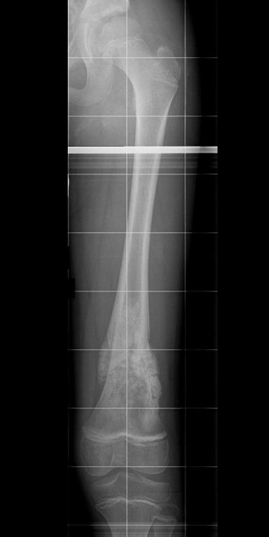 Osteosarkom oberhalb des Kniegelenks
