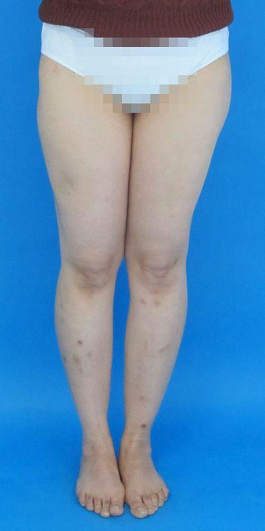 Behandlungsergebnis mit gleichlangen Beinen