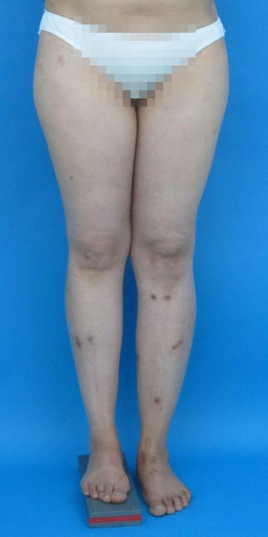 Verkürztes Bein bei Hüftluxation