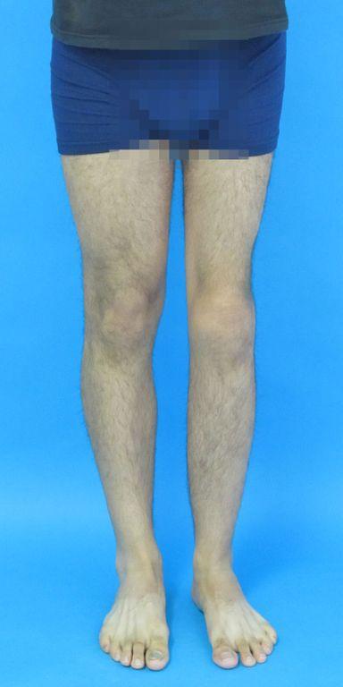 Gleichlange Beine trotz Entfernung der Wachstumsfuge