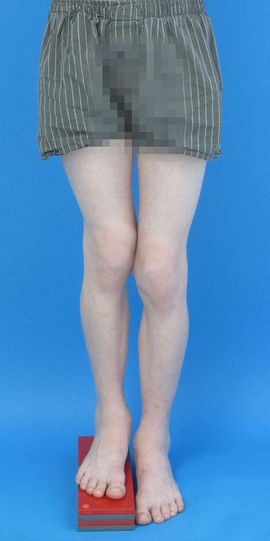 12-jähriger Junge mit Verkürzung und X-Bein