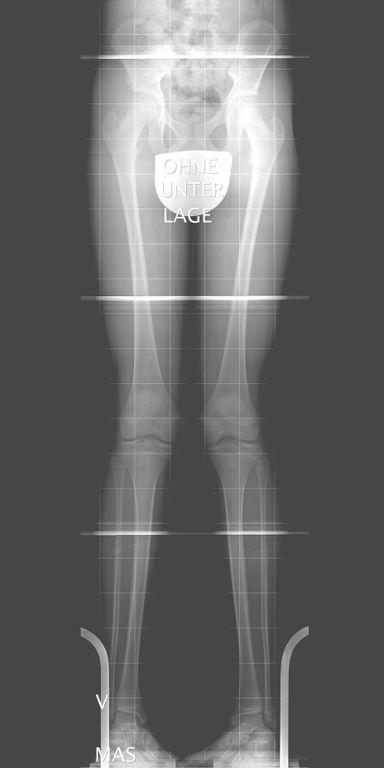 Röntgenaufnahme im Stehen