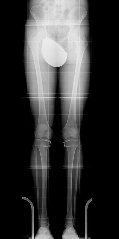 Die Röntgenaufnahme zeigt eine begradigte Beinachse