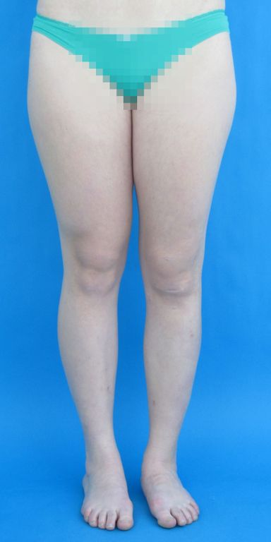 Nahezu keine Narben nach Ober- und Unterschenkelverlängerung links