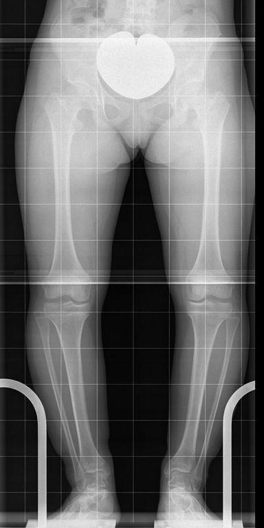 Kurze Ober- und Unterschenkelknochen in O-Bein-Stellung