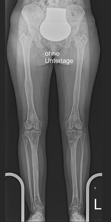Seitengleiche gerade Beine nach 15 cm Verlängerung