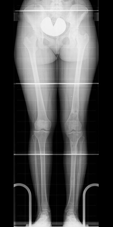 Seitengleiche gerade Beine
