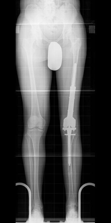 Nicht die Prothese sondern der Knochen wurde verlängert