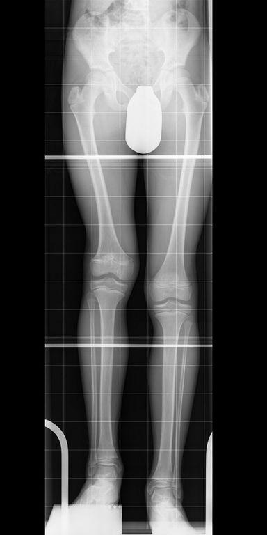 7 cm Verkürzung des rechten Oberschenkels