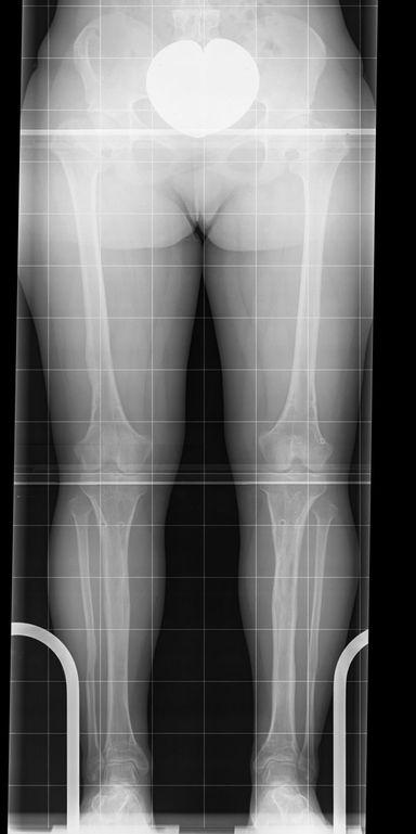 Seitengleiche gerade Beine nach 12 cm Verlängerung