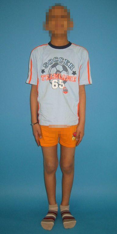 9-jähriger Junge mit bösartigem Knochentumor