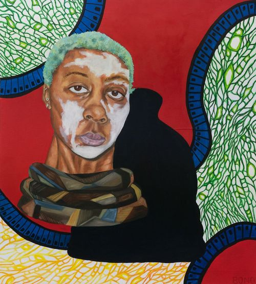 Head of a black woman with patches of white on her face and green hair, with a snake curled around her neck