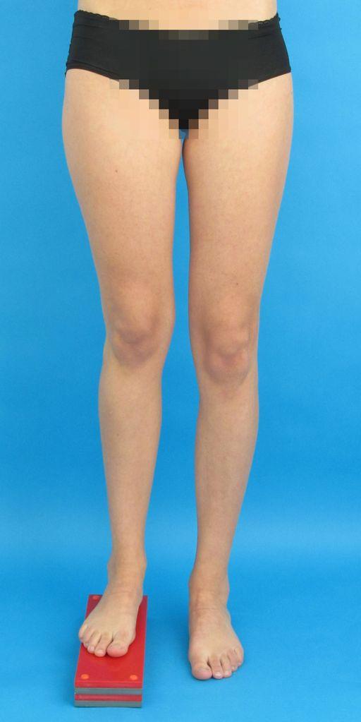 Unfallbedingte Beinverkürzung