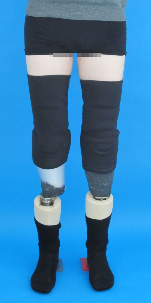 Beidseitige Orthesen nach Unterschenkelverlängerung