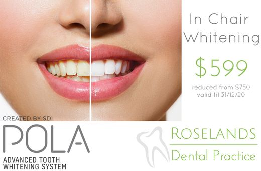 Teeth Whitening $599 Special Offer