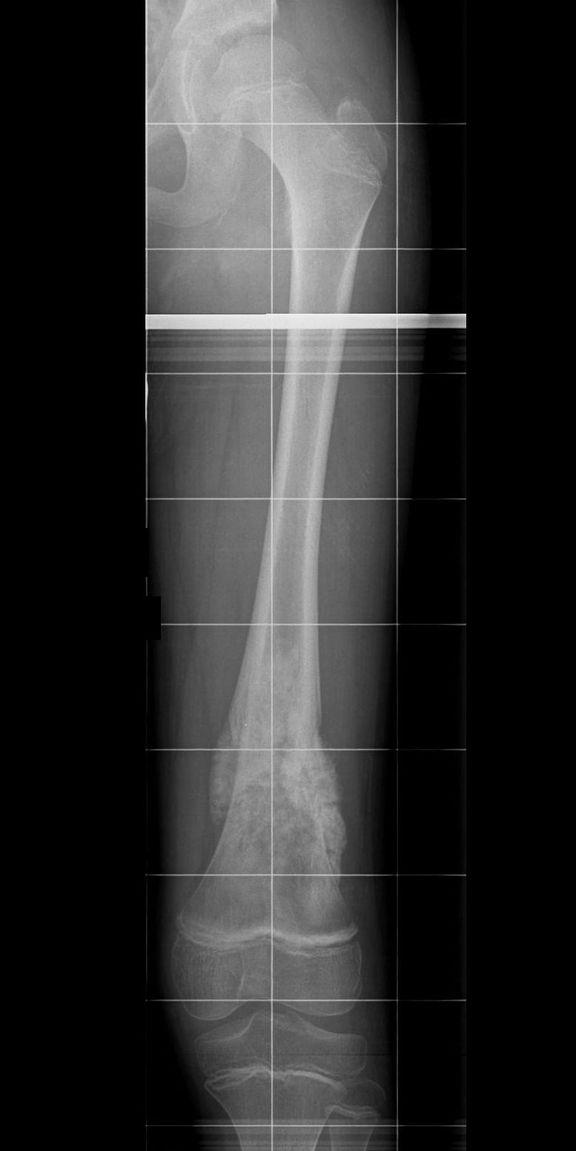 Osteosarkom distaler Femur