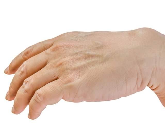 Ganglion an der Hand