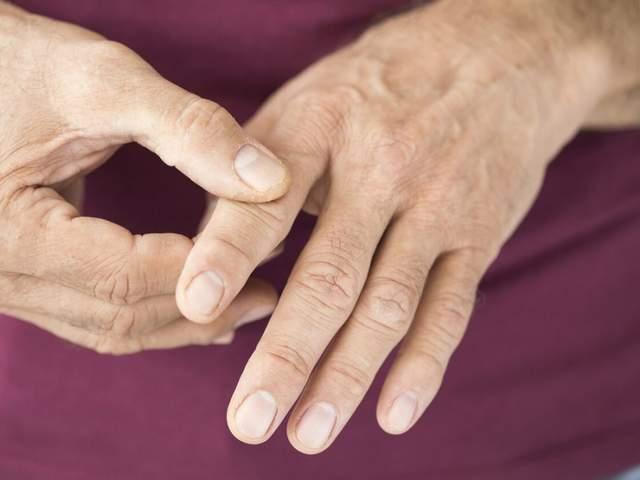 Mann fasst sich an Zeigefinger aufgrund einer rheumatoiden Arthritis