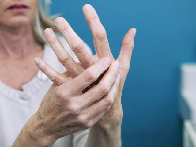 Frau fasst sich an Hand aufgrund von Gelenkschmerzen
