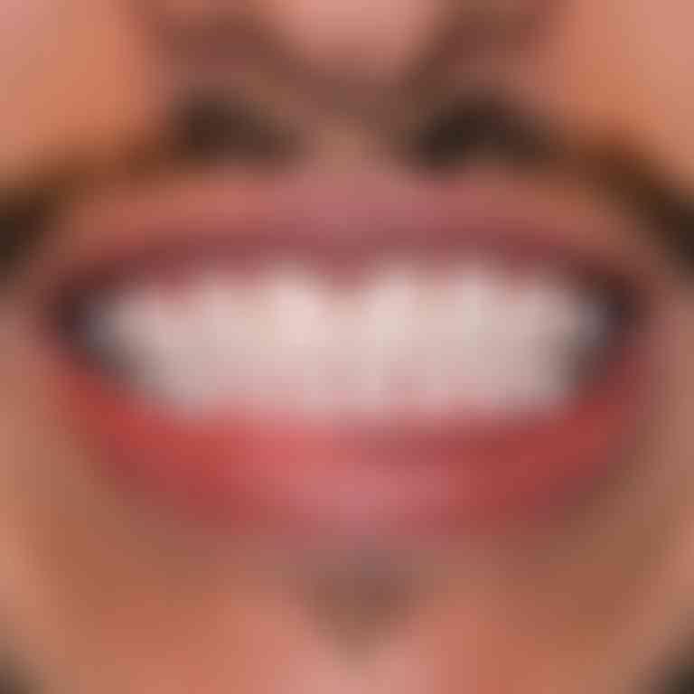 Mario nachher