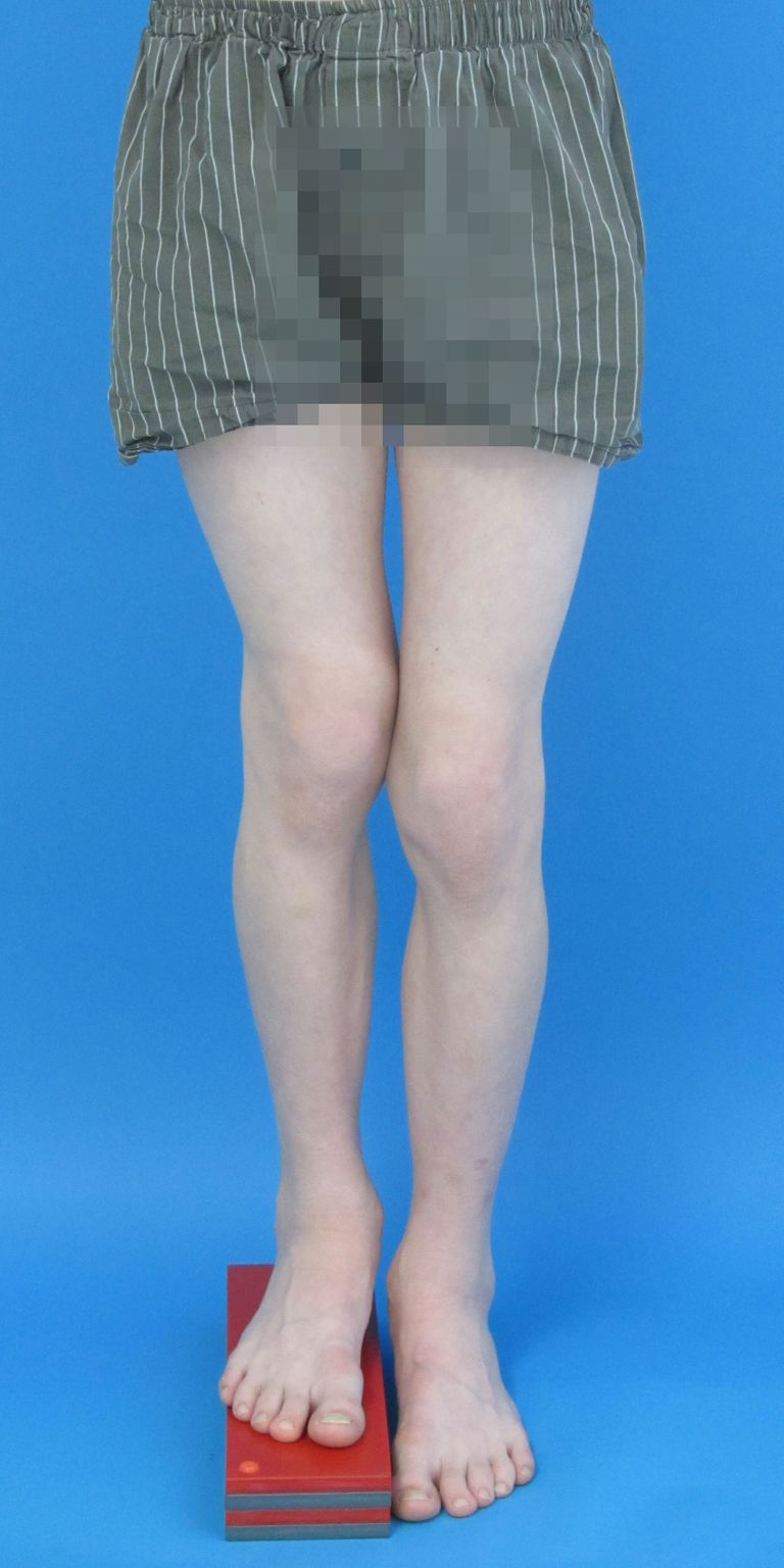 Angeborene Beinverkürzung