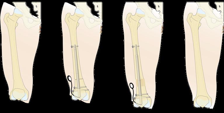 Beinverlängerung