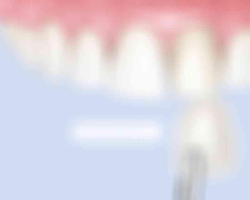 bestsmile Veneers | Ultrasottili e leggere
