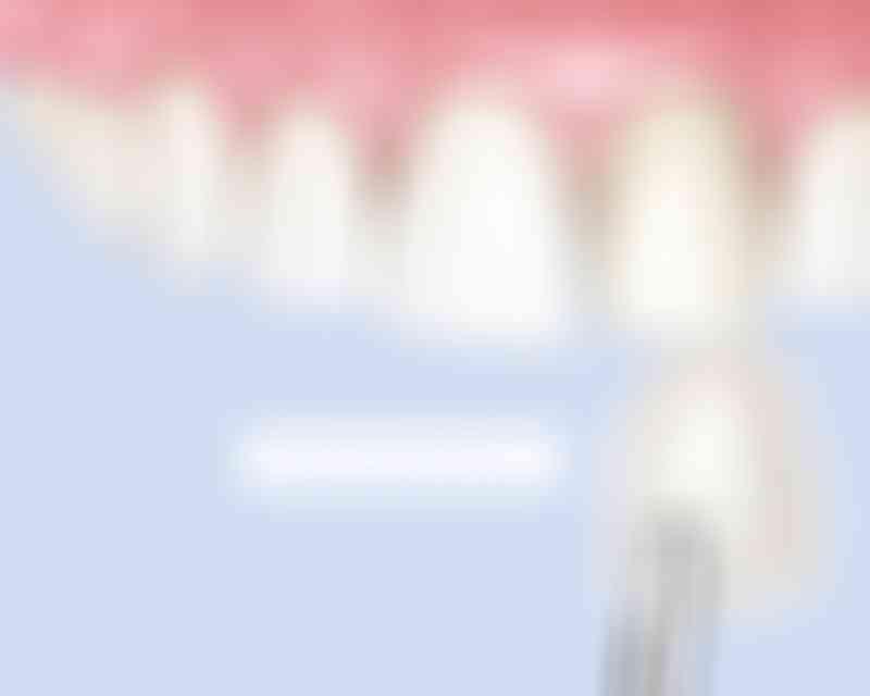 bestsmile Veneers | Dans la plupart des cas, moins de 0,5 millimètre de la surface de l'émail est retiré afin d'appliquer nos facettes ultrafines.